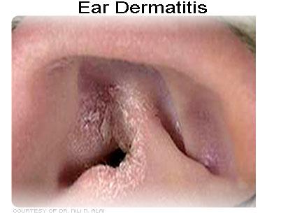 Ear Dermatitis