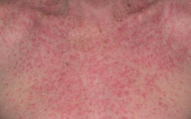 Eczema Causes Symptoms