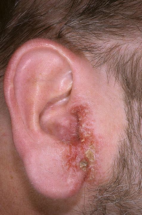 eczema ear