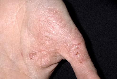 Mild Eczema on Fingers
