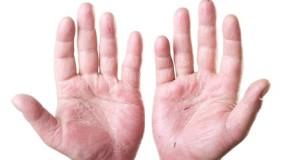Is Eczema Contagious?