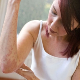 Eczema and Dermatitis Explained