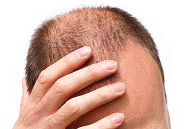 Dermatitis Hair Loss