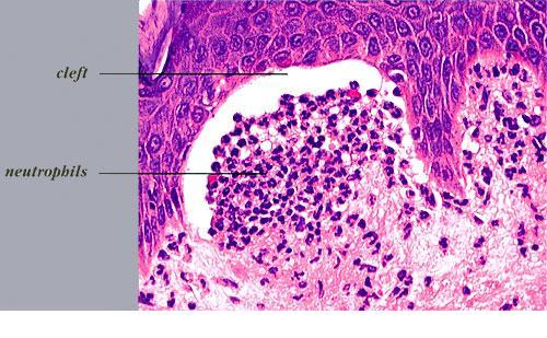 dermatitis herpetiformis histology