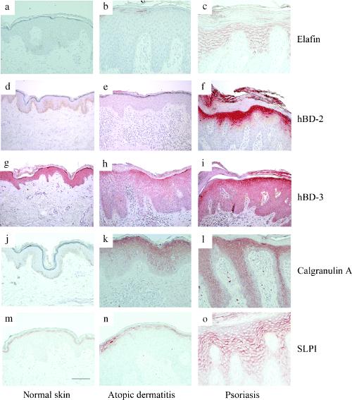Atopic Dermatitis Skin