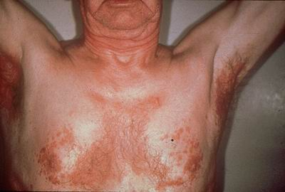Brown Dermatitis