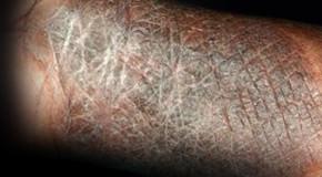 Chronic Atopic Dermatitis