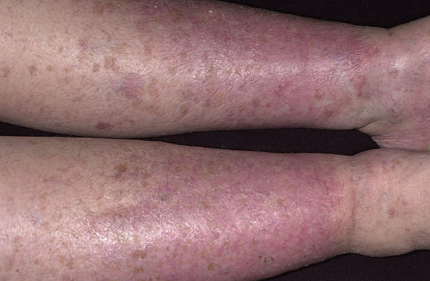 Chronic Stasis Dermatitis