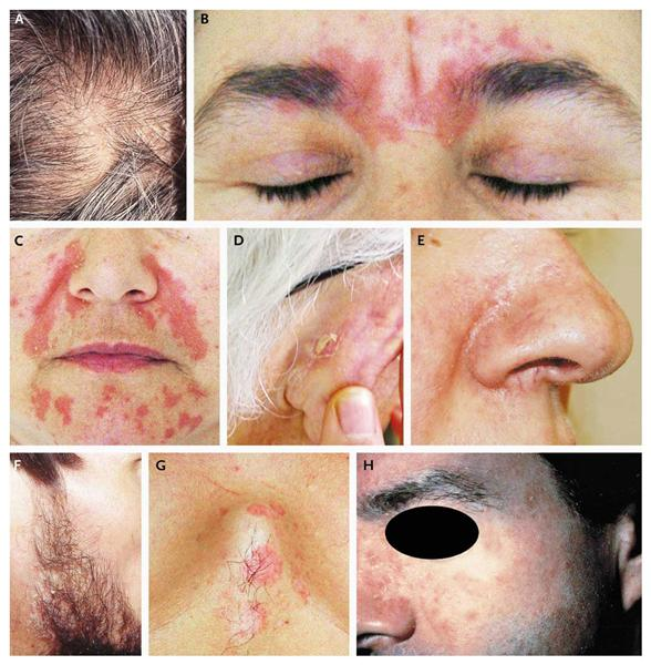Dermatitis is Caused by