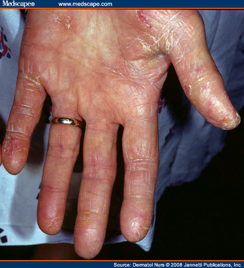 Dermatitis of the Hand