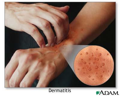 Dermatitis Skin