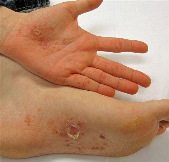 Dishidrotic Eczema