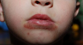 Eczema Around Mouth