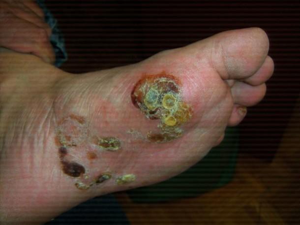 Eczema Blisters