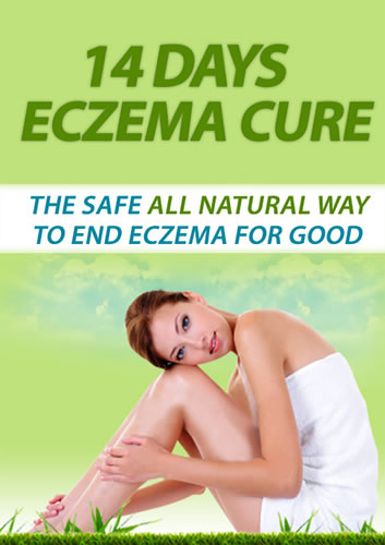 Eczema Cure Treatment