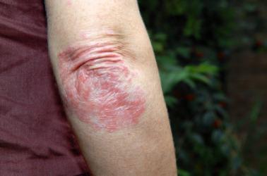 Eczema Elbows