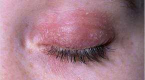 Eczema Eye