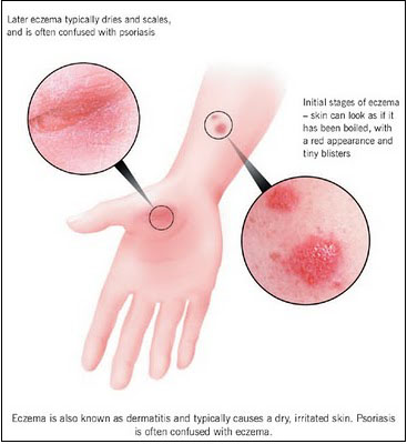 Eczema Facts
