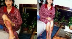 Eczema Natural Cure