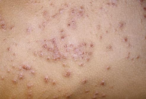Eczema Rashes