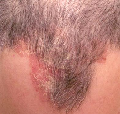 Eczema Scalp Pictures