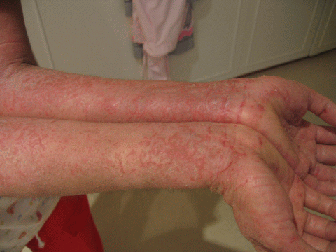 Eczema Type Rash