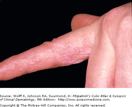 Eczematous Dermatitis