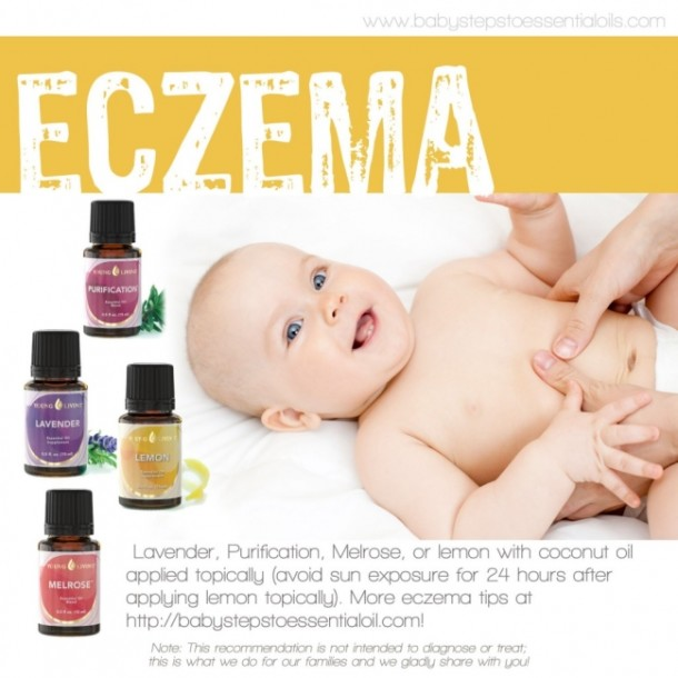 Essential Oils Eczema