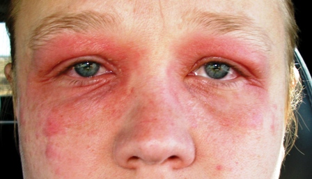 Eyelid Dermatitis Treatment