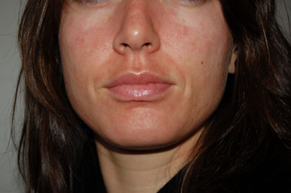 Face Rash Pictures