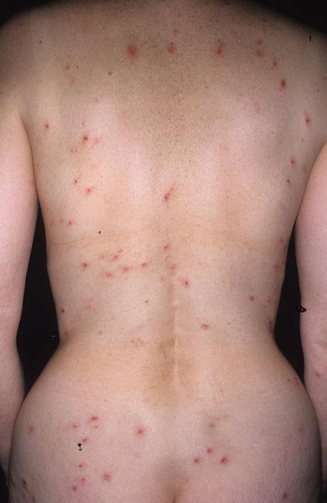 Herpetiformis Dermatitis