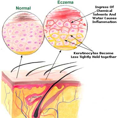 home treatment eczema