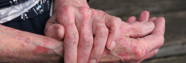 homeopathy eczema