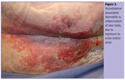 Incontinence Dermatitis