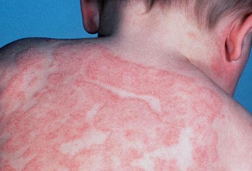 Infant Atopic Eczema