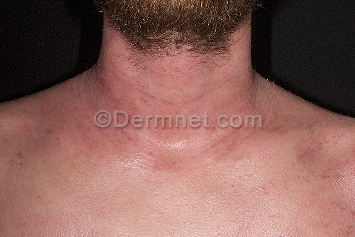 mild atopic dermatitis neck