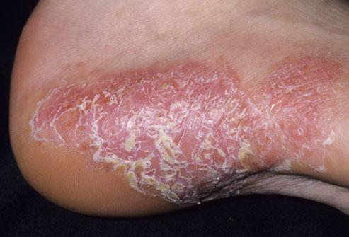 Mild Psoriasis Foot