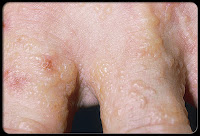 seborrheic dermatitis on hands