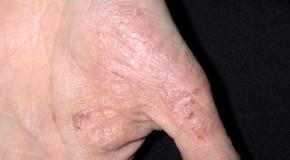 Severe Eczema on Hands Treatment