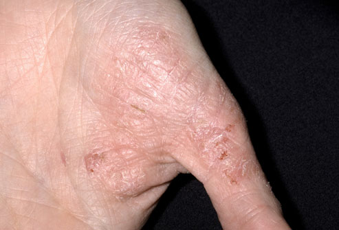 Severe Eczema on Hands Treatment
