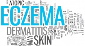 Pompholyx Eczema: Symptoms, Causes and Treatment
