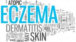 Pompholyx Eczema: Symptoms, Causes and Treatment