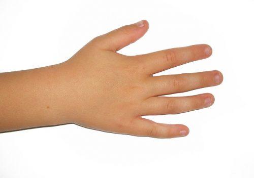 Hand Eczema