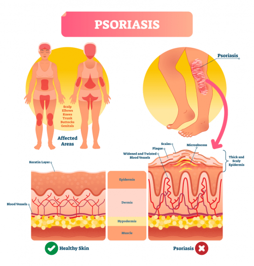 psoriasis skin disease diagram