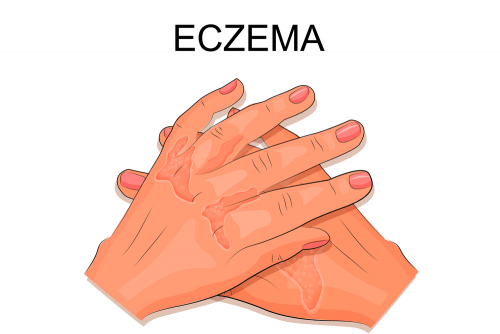eczema on hands 1